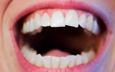 Perigos para a saúde bucal