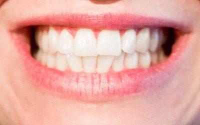 Bruxismo: você aperta os dentes?